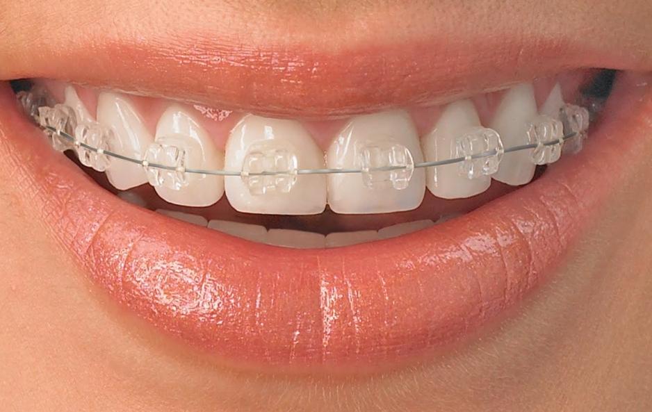 Керамические брекеты - комфортное выравнивание зубов