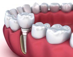 dental implant1